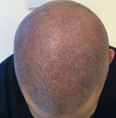Kopfhautpigmentation-Tricho-Pigmentation