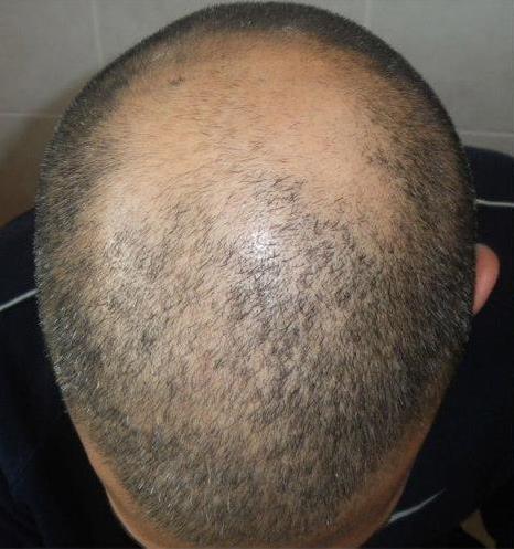 Kopfhautpigmentation